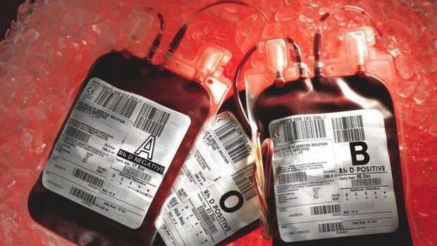 Американцы борются со старением, переливая себе кровь молодых