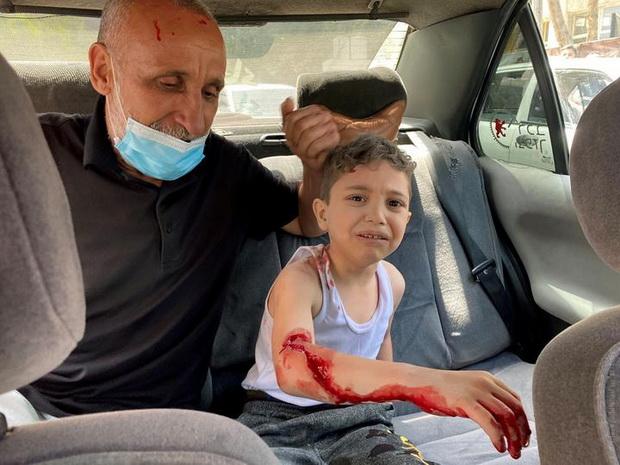 Палестинского мальчика, пострадавшего в результате атаки израильских сил на одно из зданий в Газе, везут в больницу