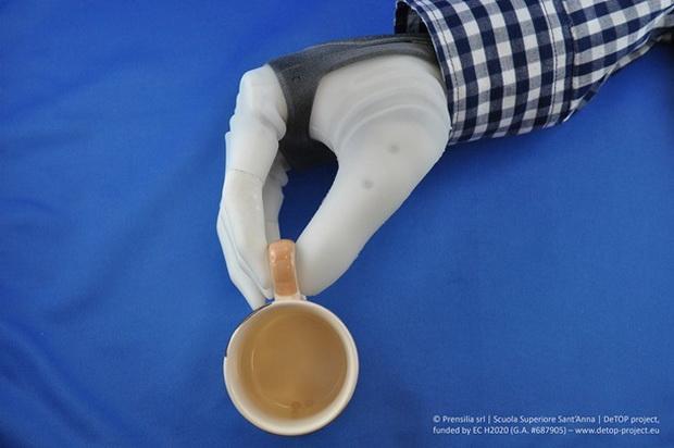 Это первый клинически жизнеспособный, ловкий и чувствительный протез руки, пригодный для использования в реальной жизни.