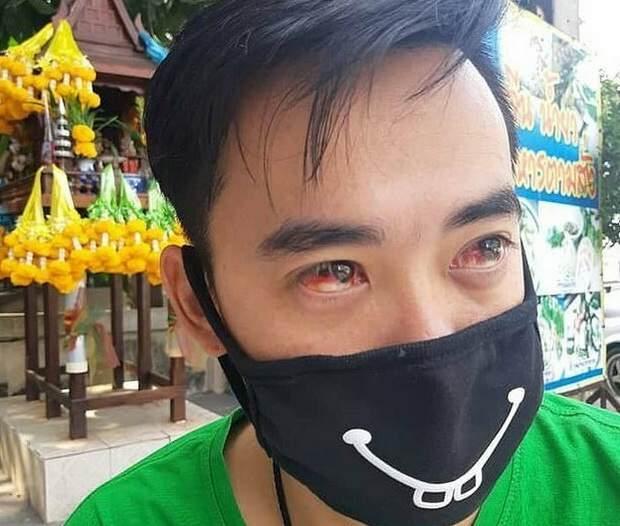 На Бангкок опустился тяжелый смог. Жители тайской столицы страдают от кровохарканья и носовых кровотечений, и даже животные наравне с хозяевами мучаются от недостатка кислорода.